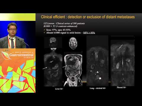 Keynote Lecture 5: The value of whole body diffusion-weighted MRI for staging patients with CRC