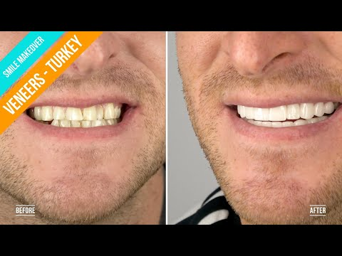 Callum visited Dental Centre Turkey | Zirconium Crowns/Full Veneers in Turkey