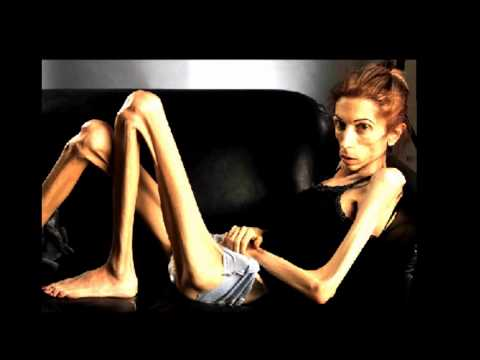 Anorexic pictures Nude Photos 89