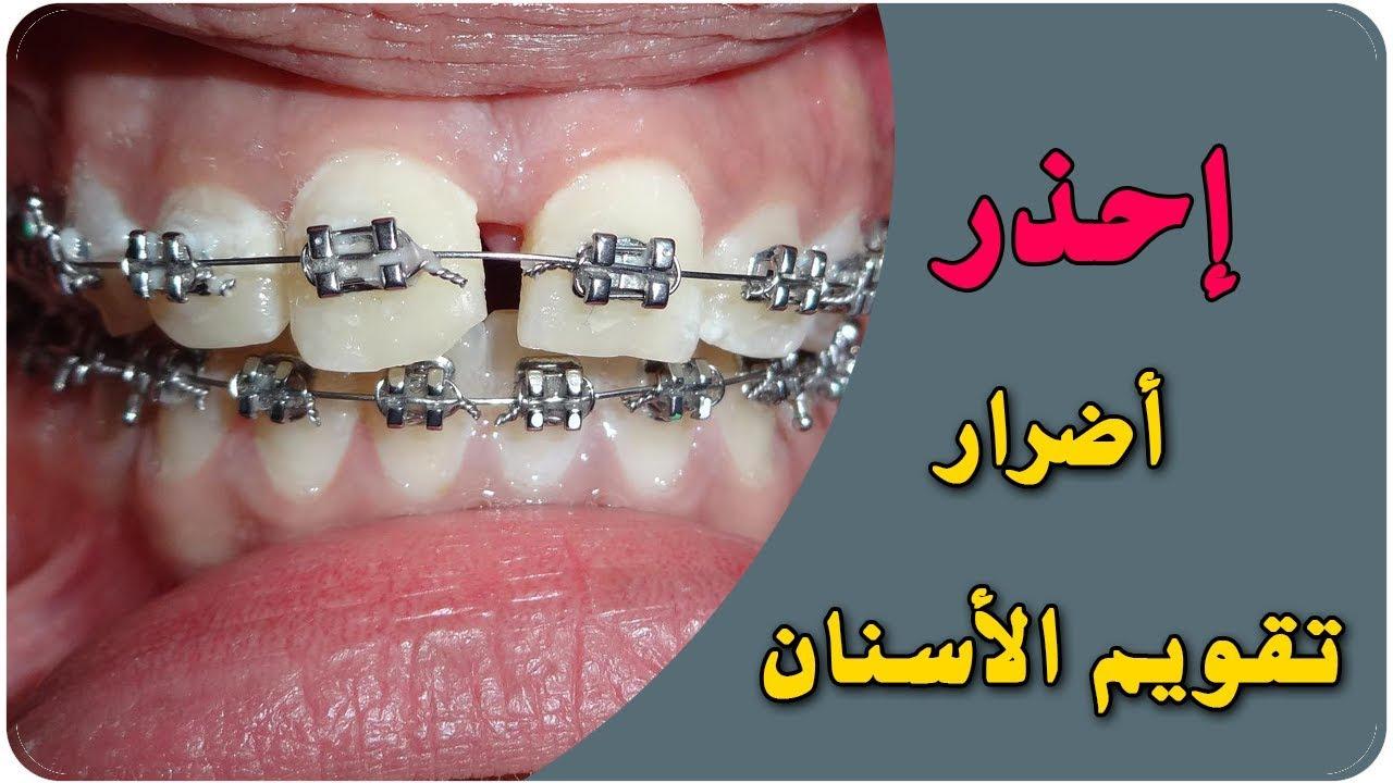 احذر أضرار تقويم الأسنان Youtube