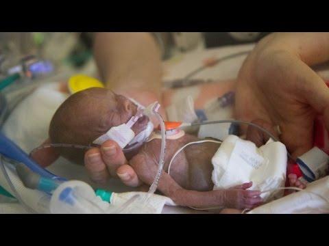 Bebé milagro se libró del aborto y desafió a la ciencia