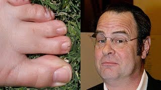 Celebrities With Webbed Toes