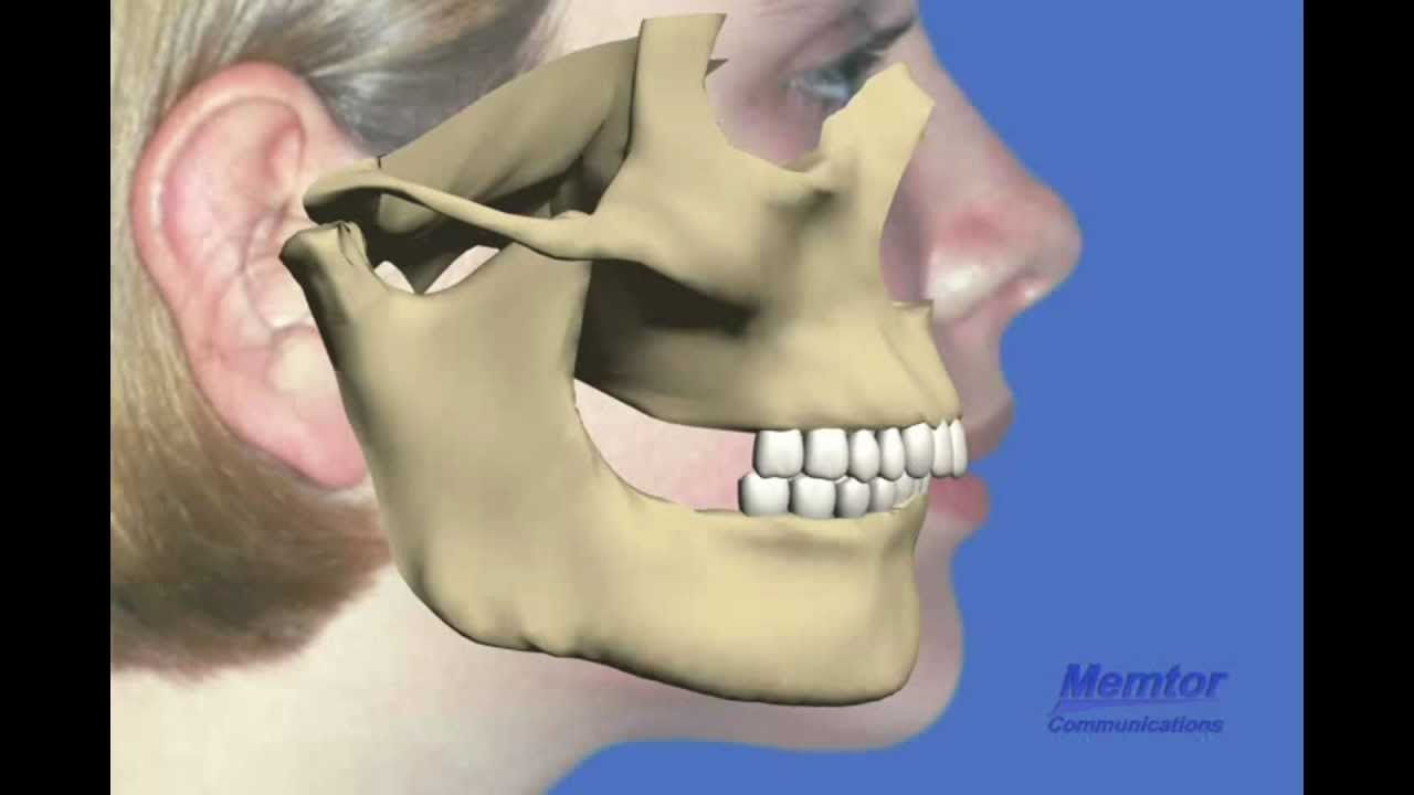 Herbst Appliance Move Lower Jaw Forward Youtube