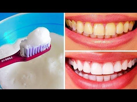 Как выбелить зубы в домашних условиях