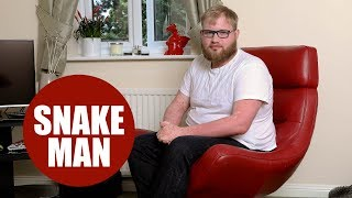 """Hospital worker tells how painful psoriasis has turned him into a """"human snake"""""""