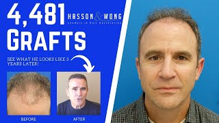 4481 hair transplant FUT | Hair Transplant Repair | 3 years Post-Op