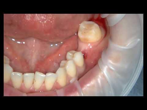 Как вставляют зубные импланты