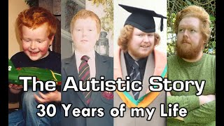 The Autistic Story - 30 Years of my Life (Birthday Special)