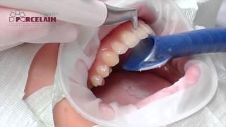 Чистка зубов с помощью Air Flow и Ультразвука(Наглядно про комплексную чистку зубов - Air Flow и Ультразвук., 2015-02-25T11:40:27.000Z)