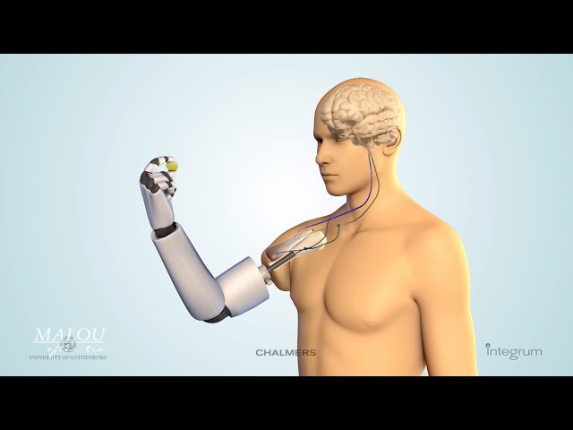 Världsunik protes-forskning – Känns som en riktig kroppsdel - Malou Efter tio (TV4)