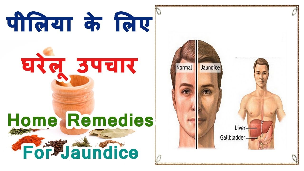 jaundice symptoms Symptoms of jaundice in babies other causes of jaundice in babies jaundice can also be caused by a range of other conditions and events including.