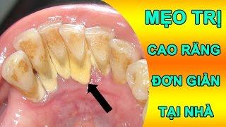 Mẹo trị cao răng đơn giản tại nhà