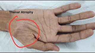 Thenar Atrophy in Motor Neuron Disease