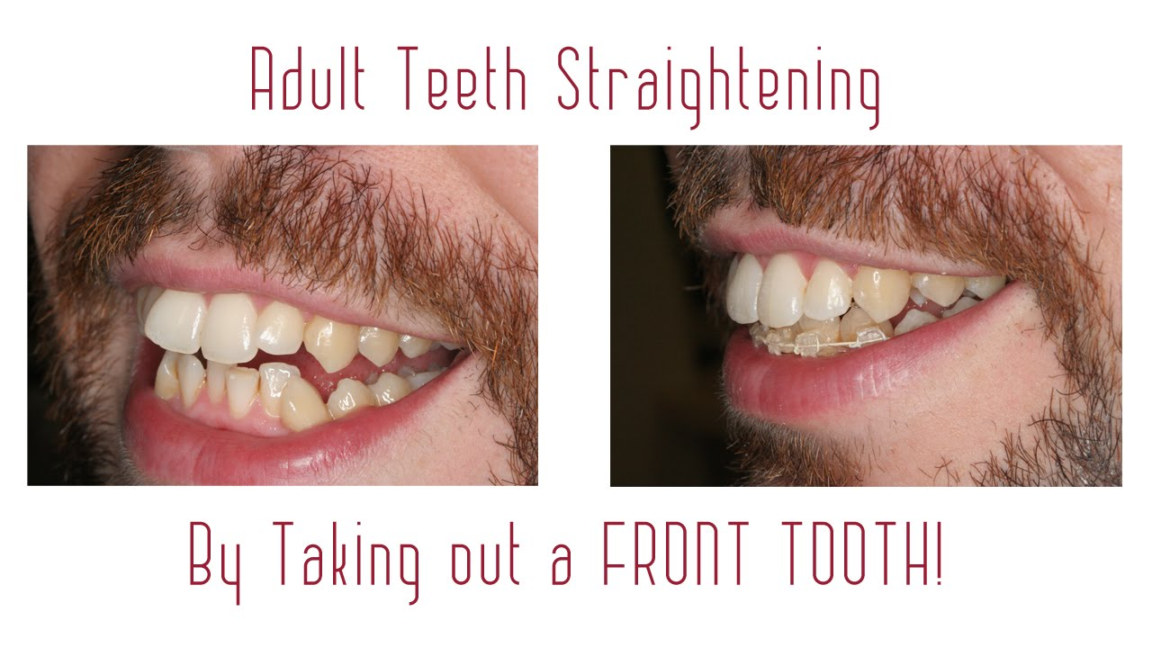 Adult Braces In 6 Months After Taking Out A Front Tooth