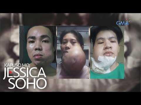 Kapuso Mo, Jessica Soho: Killer Smile