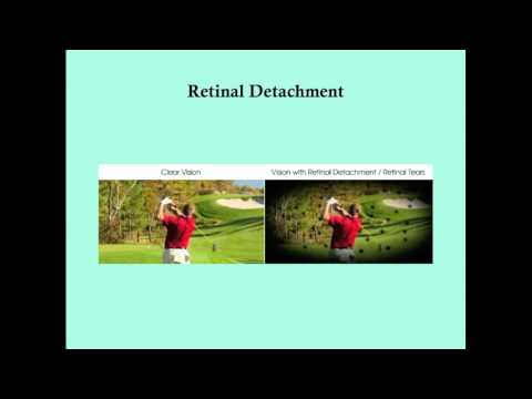 Retinal Detachment - CRASH! Medical Review Series
