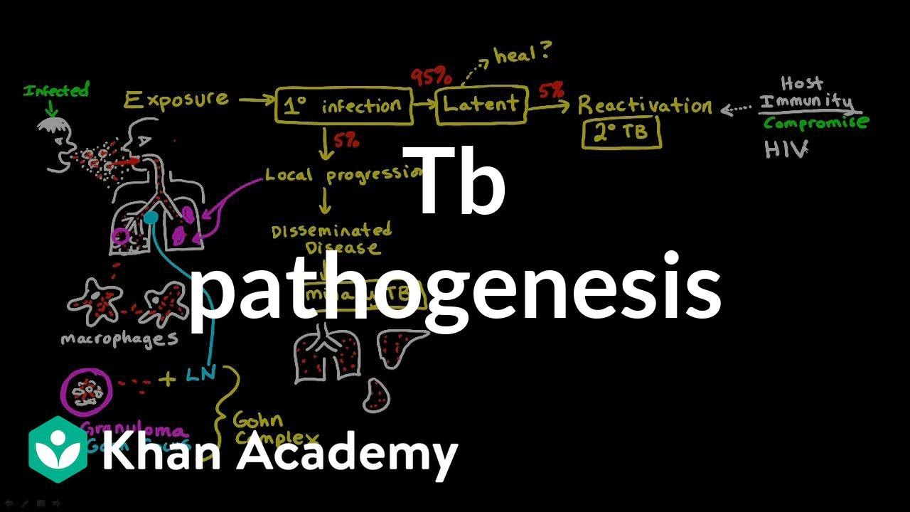 TB pathogenesis | Infectious diseases | NCLEX-RN | Khan
