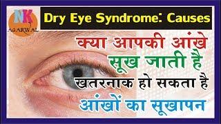 आँखों के सूखेपन (Dry Eyes)  का कारण और निवारण..गंभीर हो सकती है DRY EYES