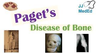 Paget's Disease Of Bone (Osteitis Deformans)   Causes, Pathogenesis, Symptoms, Diagnosis & Treatment