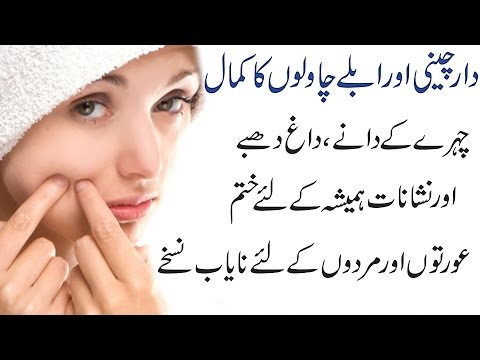 Secrets To Remove Pimples Dark Spots Acne Holes Scars