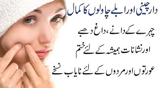 Secrets to Remove Pimples, Dark Spots, Acne Holes & Scars Overnight Complete Treatment in Urdu Hindi