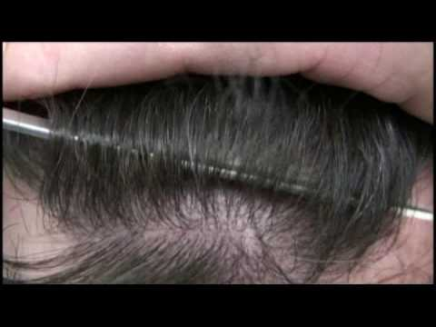 Dr Hasson Hair Transplant - 10407 grafts in 2 sessions.