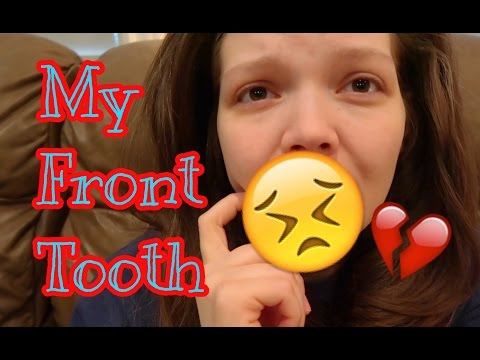 MY TOP FRONT TOOTH BROKE IN HALF! (I guess my teeth COULD get worse 😢) // Weekly Vlog #1