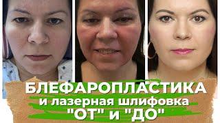 Блефаропластика и Лазерная шлифовка лица СО2 Моя история выбор врача ДО и ПОСЛЕ реабилитация