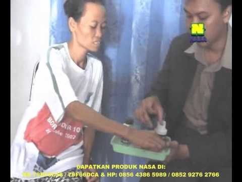 OBAT DIABETES | OBAT HERBAL DIABETES | OBAT TRADISIONAL DIABETES MELITUS