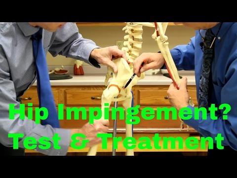 Physical Therapy Diagnosis: Hip Internal Rotationиз YouTube · Длительность: 1 мин32 с