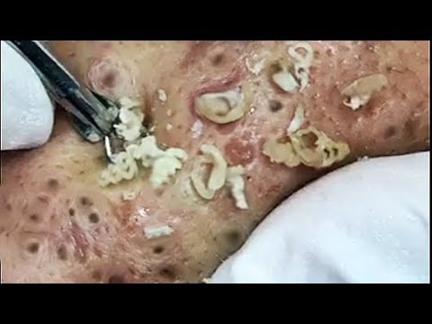 Big Blackheads Extraction from Cheeks - Best Pimple Popping videos