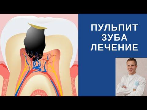 Пульпит. Лечение зуба.