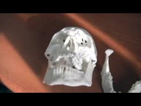 Associated Press. 3D printing technology helps reconstruct man's face
