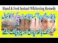 Beauty Care | Facial Hand And Feet Instant Whitening Remedy With Hydrogen Per Oxide