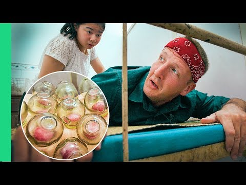 FIRE CUPPING and SEAHORSE TEA in China! Welcome to Traditional Chinese Medicine!