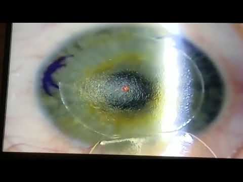 Advanced LASIK at Solomon Eye Associates, Physicians & Surgeons