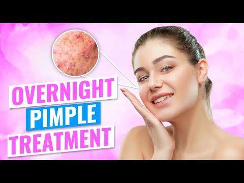 hqdefault - Tea Bag Pimple Trick