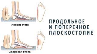 что нужно знать о продольном и поперечном плоскостопии