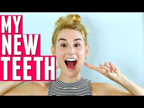 GETTING VENEERS! | All About My New Teeth | HEYKACKIE