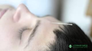 Рефлексотерапия (иглоукалывание, моксатерапия, аурикулотерапия, точечный массаж)