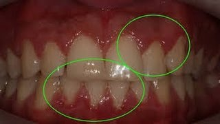 RubeTube: Cure Puffy-Swollen-Infalmmed Gums-After Braces