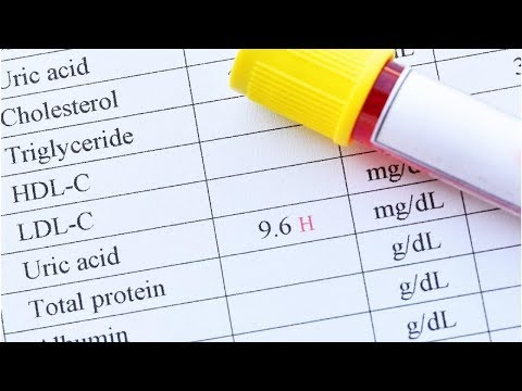 uric-acid-protects-against-lung-function-decline-in-females