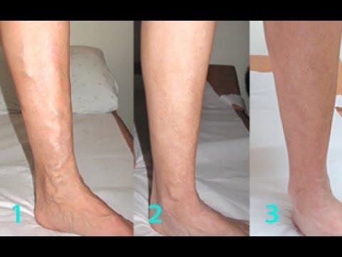 Варикоз вен малого таза и матки: симптомы и лечение