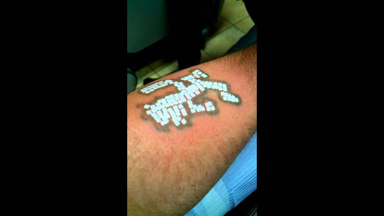 Laser tattoo removal worst pain ever youtube for How painful is tattoo removal