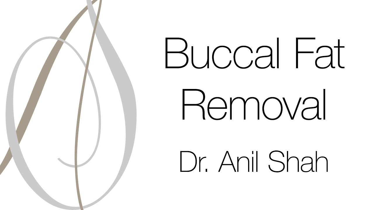 Buccal Fat Removal - YouTube