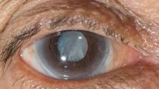 New eye drops may help treat cataracts