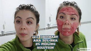 The ordinary  - aha+bha peeling experiment ep.4