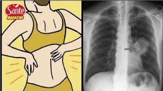 Voici 10 signes précoces qui montrent qu'un cancer mortel se propage dans vos poumons