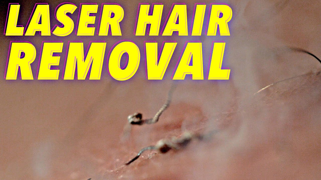 hight resolution of science of laser hair removal in slow motion