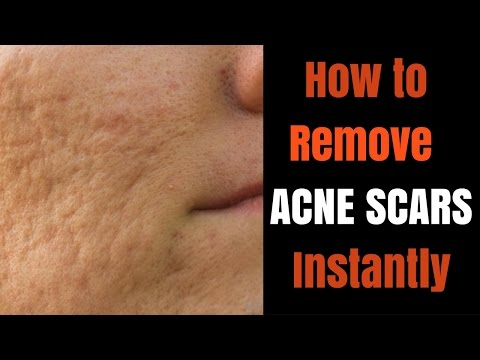 Instant acne scar removal